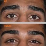 коррекция бровей до и после 4