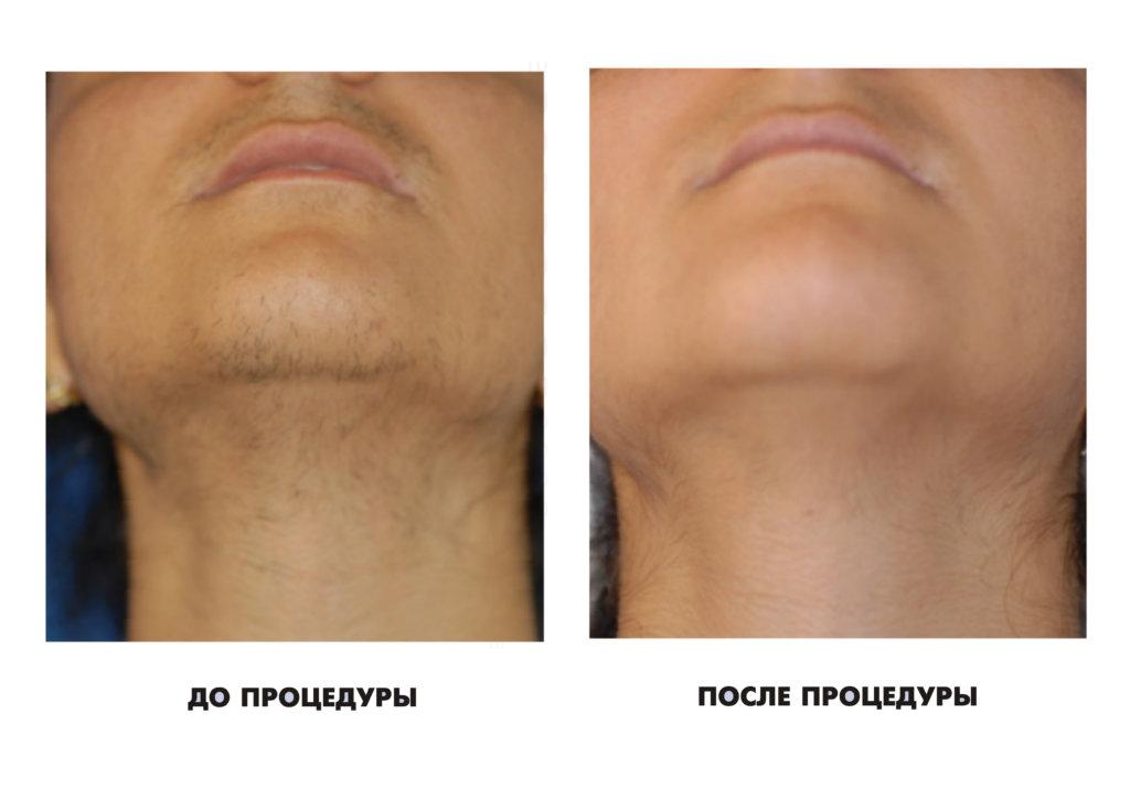 Удаление волос на лице эпилятором отзывы