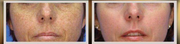 пилинг при пигментации кожи