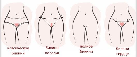 виды и формы ваксинга бикини