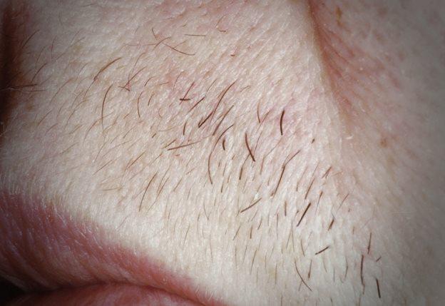 способы удаления волос на лице навсегда