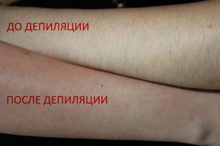 депиляция рук воском