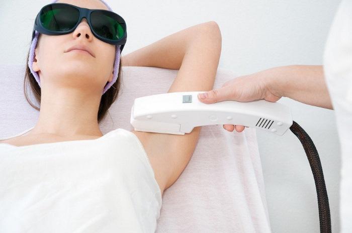 элос эпиляция сколько нужно процедур