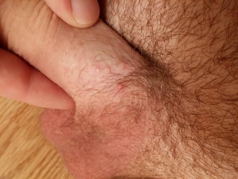 Как вылечить грибок на ногтях в дом условиях