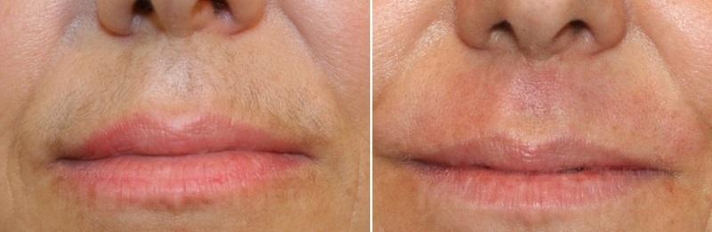 Цена фотоэпиляция усов лазерная эпиляция сколько длится эффект