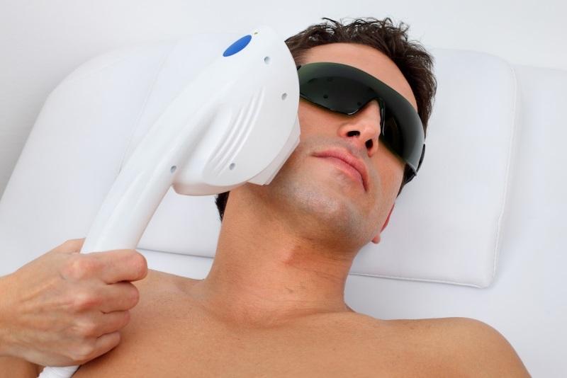эпиляция лазером лица