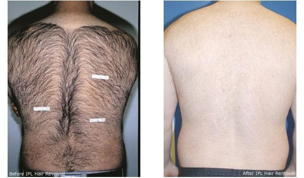 крем для удаления волос эйвон отзывы