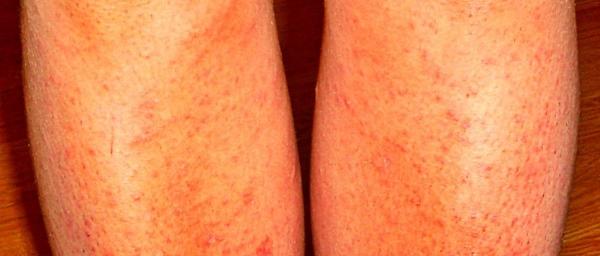 Волосы на ногах после бритья врастают
