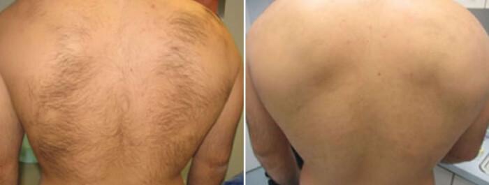 лазерная эпиляция спины у мужчин