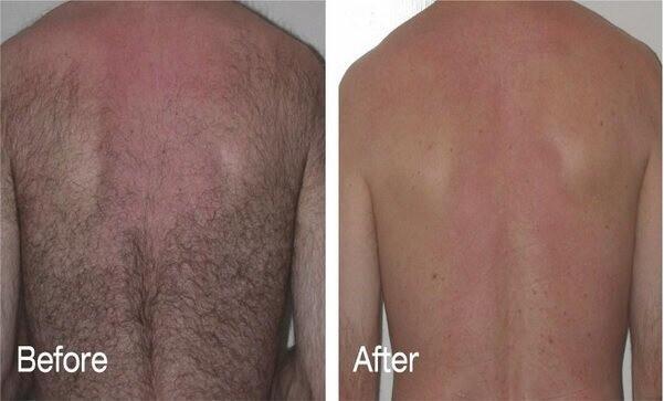 эпиляция спины у мужчин